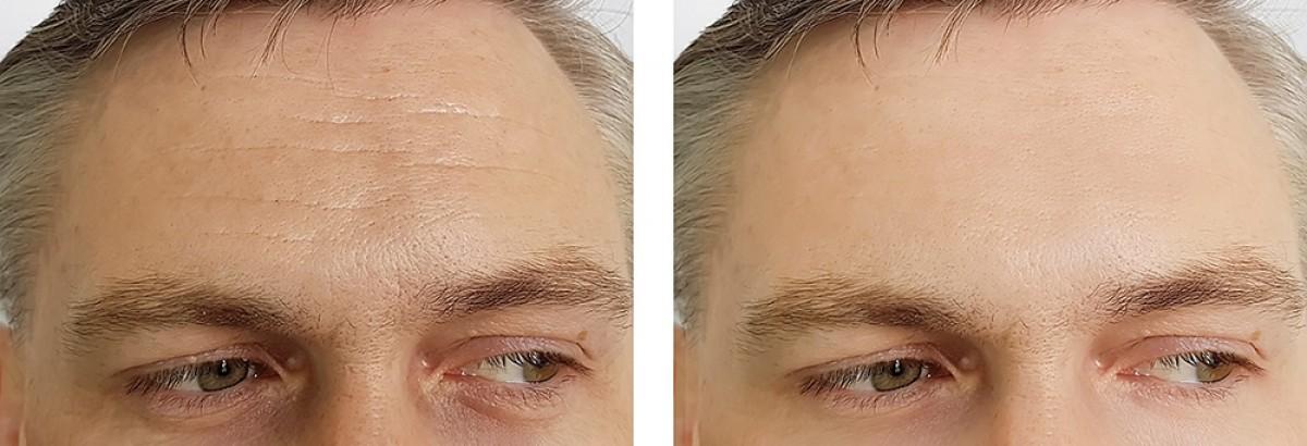 az állkapocs fogyás botox elromlott dieta cu suc de lamaie